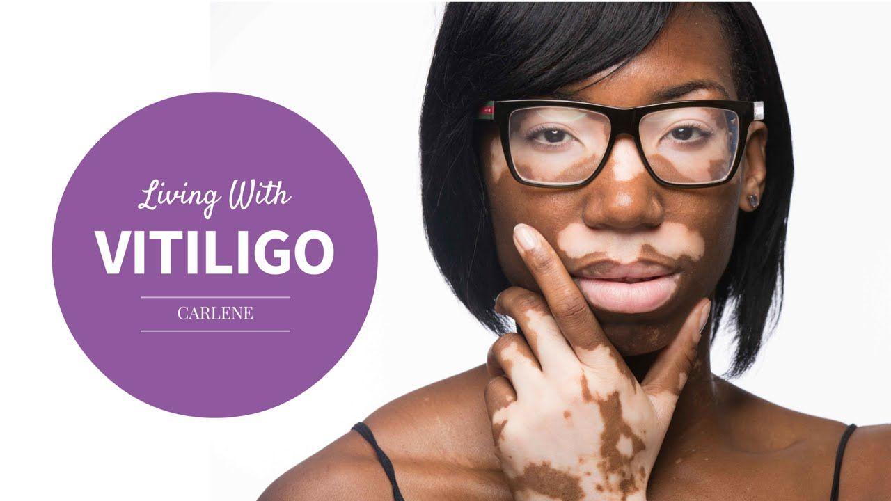 My Vitiligo Story: Carlene   Zanderm