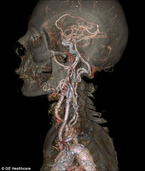 Brains Veins And Bones As You Ve Never Seen Them Body Scanner Body Scanning Human Body