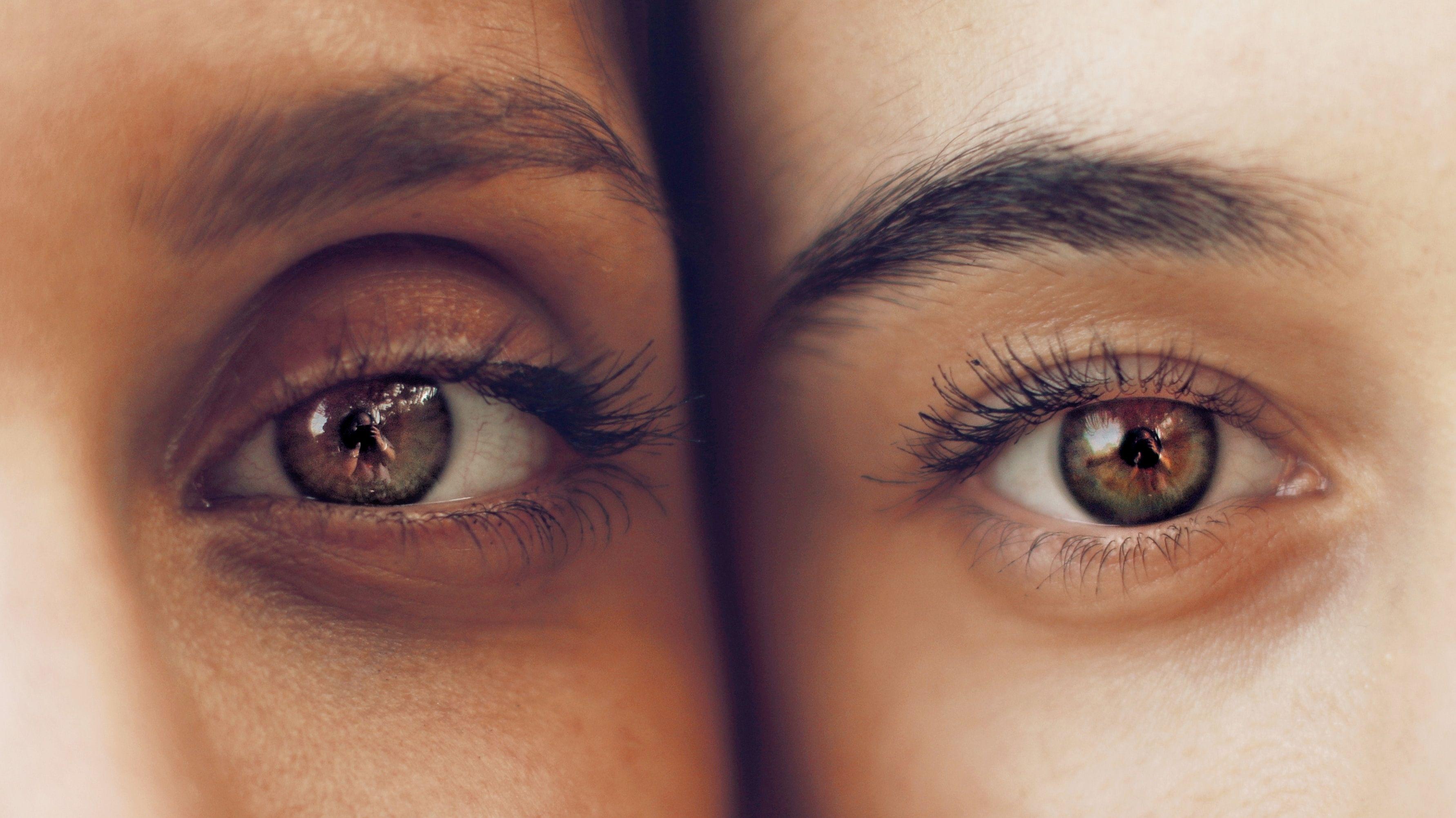 mörka ringar under ögonen orsak