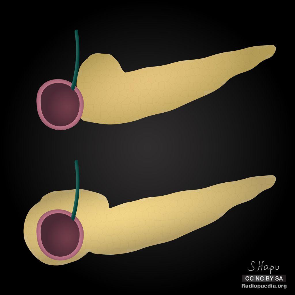 Annular pancreas: diagrams | Radiology Case | Radiopaedia.org ...