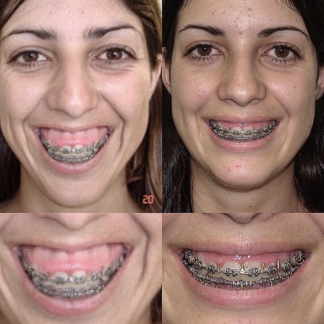 Dental Assistant Jobs Near Me 2018   Dental and Orthodontics 7e5fafe60a