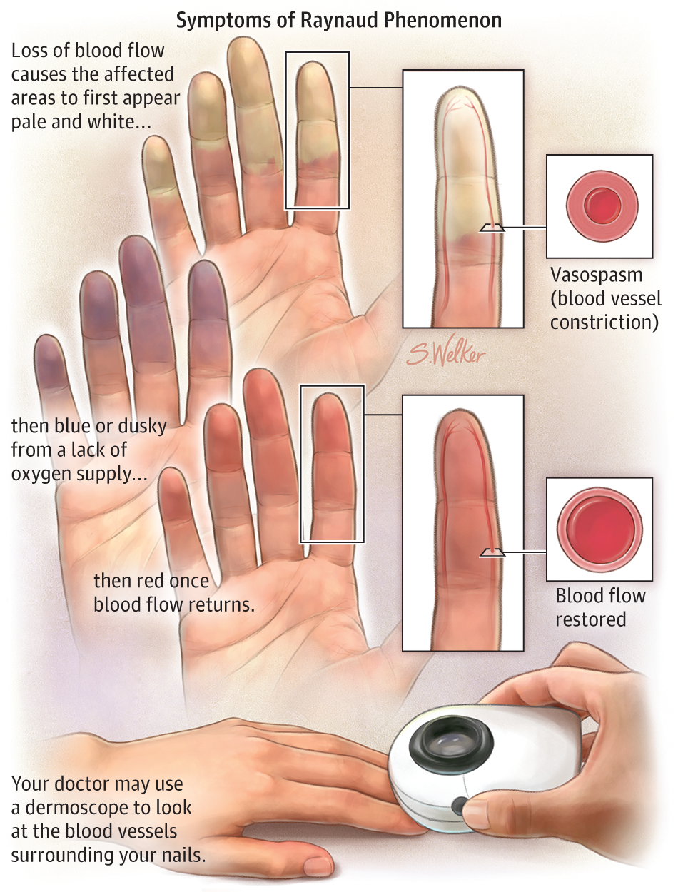 the definition and treatment of raynauds condition Raynaud's syndrome, also called raynaud's phenomenon, is a condition that involves brief episodes of vasospasm where blood vessels narrow, resulting in a decrease in blood flow mainly to toes and fingers, but sometimes to other extremities, including the nose, lips, ears, and nipples.