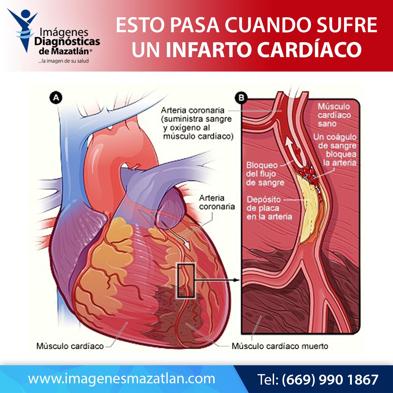 Pin En Cuida Tu Corazón Prevención De Infarto