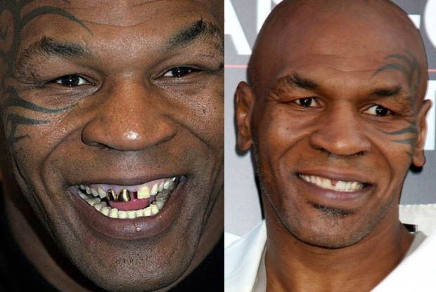 Mike Tyson porcelain veneers