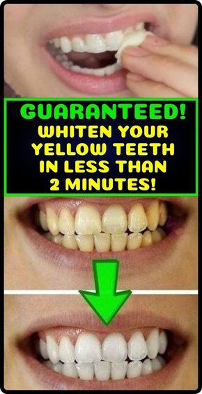 GUARANTEED! WHITEN YOUR YELLOW TEETH IN LESS THAN 2 MINUTES
