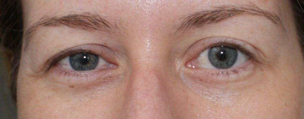 Exercises for drooping eyelids drooping eyelids face