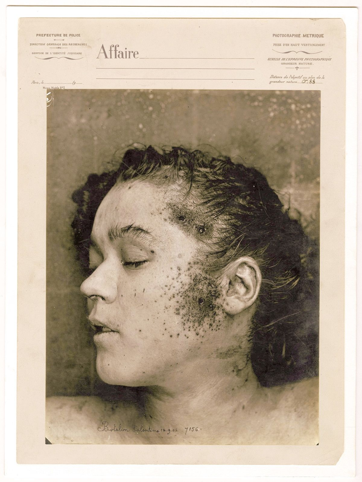 Valentine Botelin following her autopsy on September 14, 1904. After her head and hair were cleaned, the police were able to observe wounds made by three projectiles from a firearm on the woman's temple and left cheek.