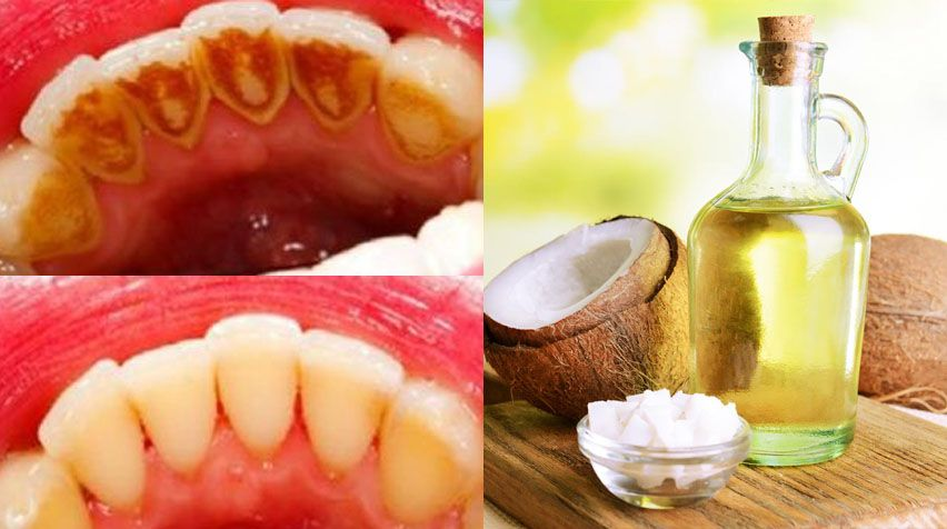Easy tricks for healthy gums and whiter teeth. White