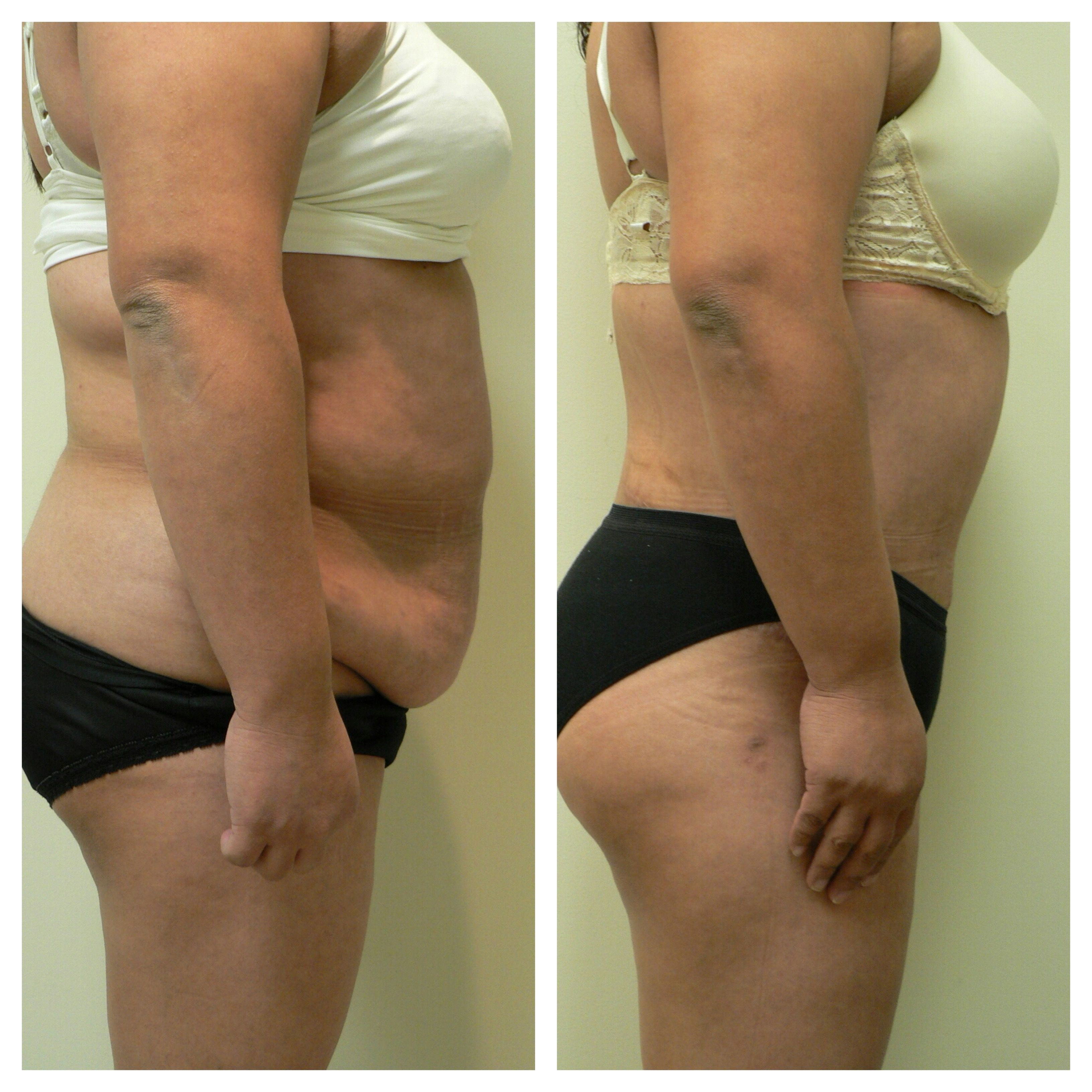 Before After Of Body Contouring After Major Weight Loss