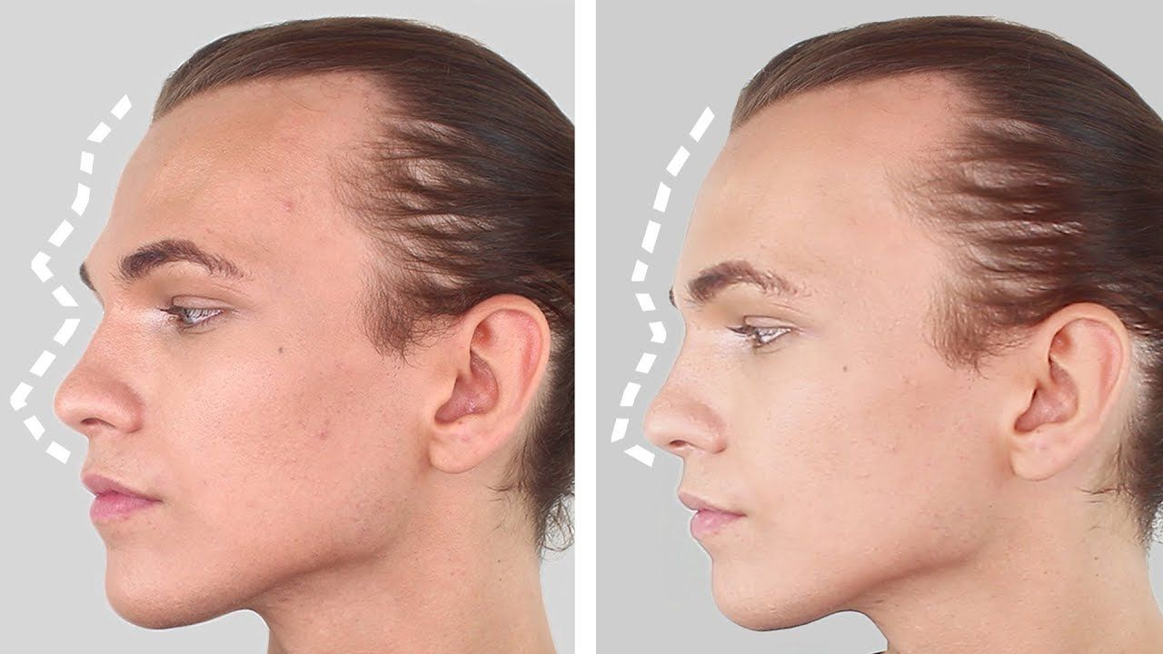 Face Transformation (Facial Feminization Surgery, Facial Masculinization Surgery)
