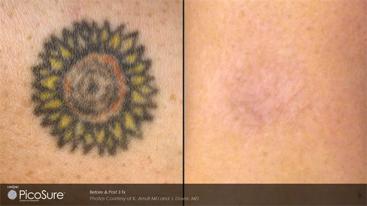 Tattoo Removal With Picosure At Maryland Laser Skin And Vein Www