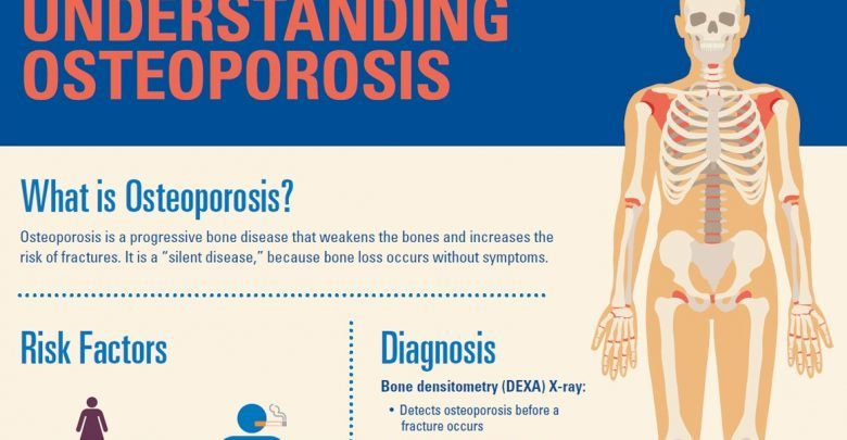 22++ Is osteoporosis a serious illness ideas in 2021