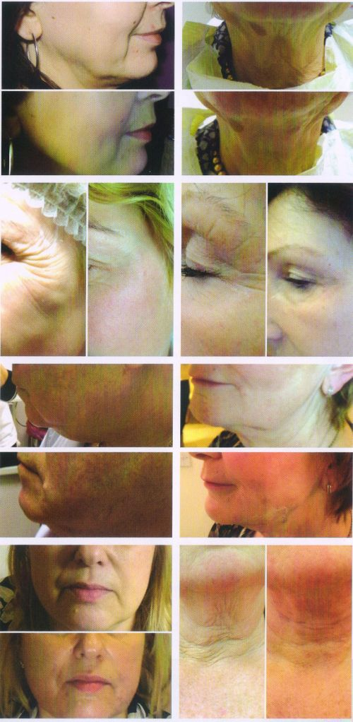The Lower Face Lift With Polydioxanone Beauty Threads In A Central