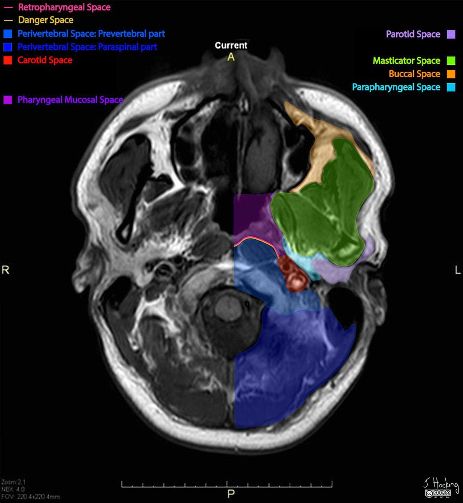 Deep spaces of the head and neck: annotated MRI | Radiology Case