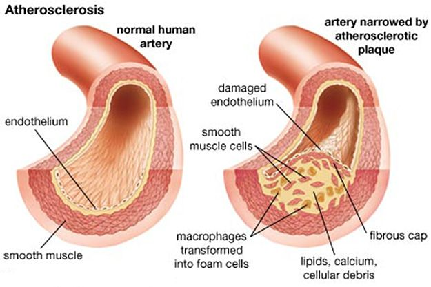 Atherosclerotic Plaque Formation and Risk Factors: See your