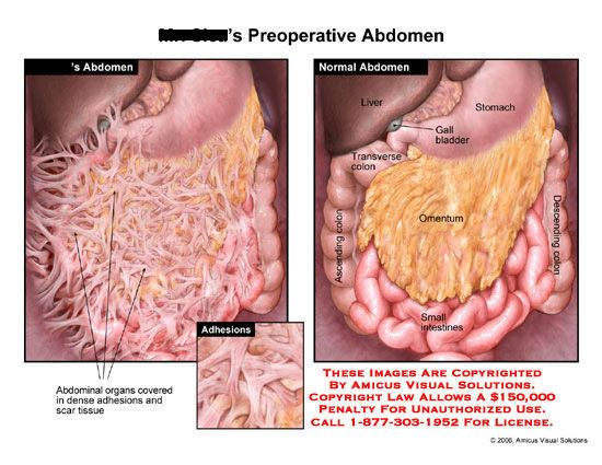 Intestines covered with dense adhesions compared to normal anatomy intestines covered with dense adhesions compared to normal anatomy ccuart Choice Image