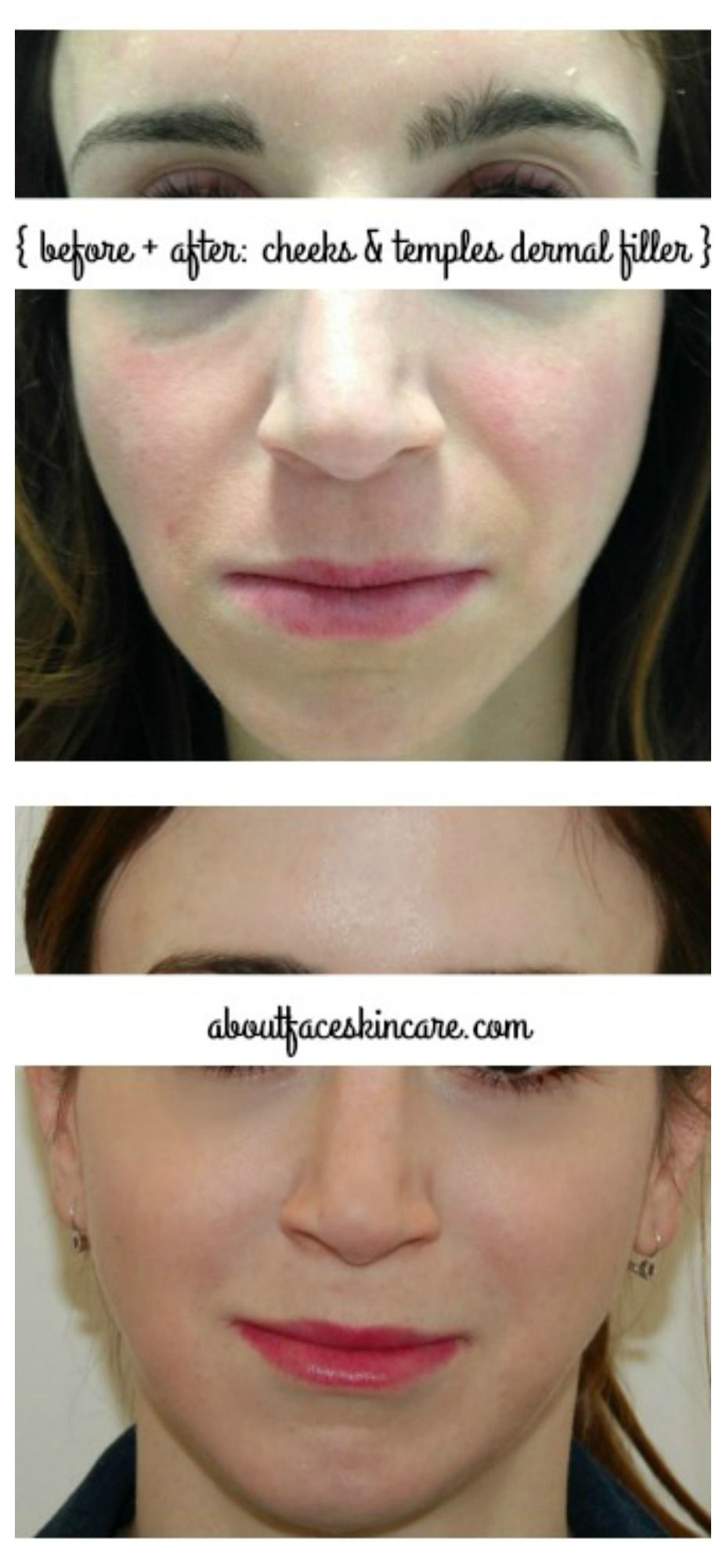Facial filler injections - Sports stores atlanta