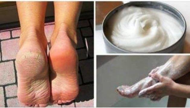 Naneste si toto na nohy. Je to lacné, ale veľmi účinné! Popraskané päty a tvrdá koža ihneď zmizne. |