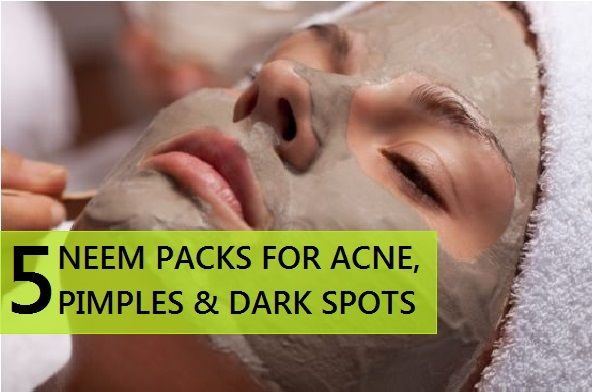 5 Homemade Neem Packs for Pimples, Acne and Dark Spots
