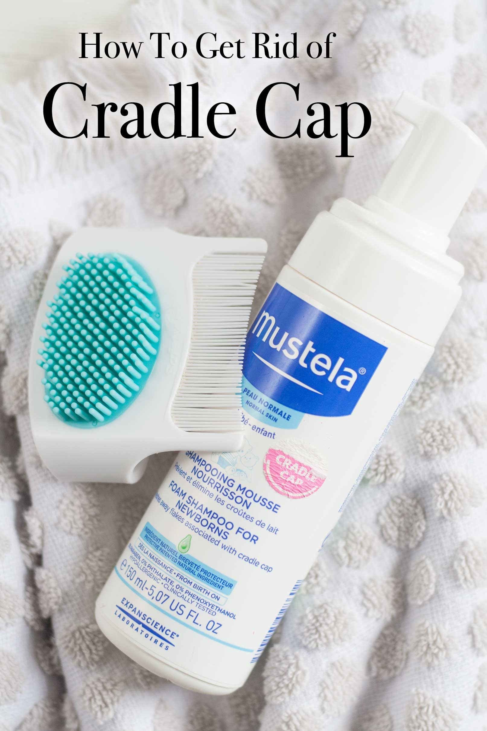How To Get Rid Of Baby Cradle Cap With Images Cradle Cap Baby Cradle Cap Baby Cradle