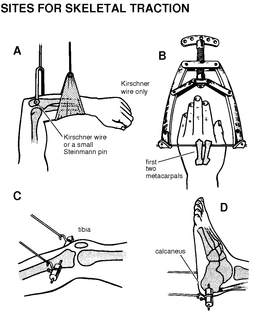 Fractures Skeletal Traction