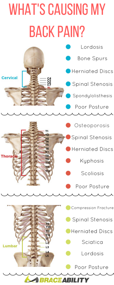 What   causing your back pain learn about the many lower middle upper conditions that can occur to spine cause you discomfort also complete guide diagnosing problems rh pinterest