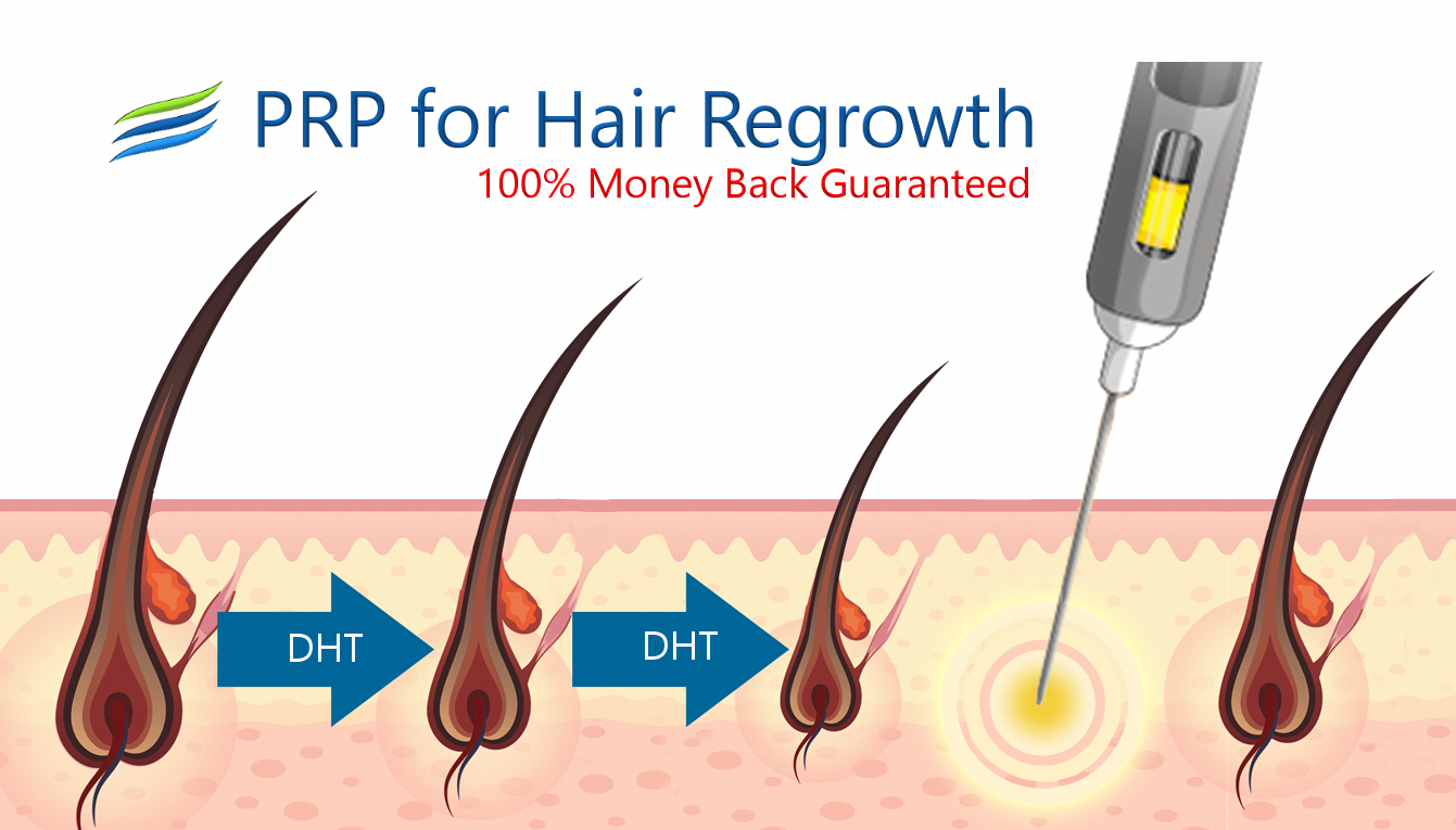 100 Money Back Guarantee That Prp For Hair Loss Treatments With Great Directions Australia Will Help You Prp For Hair Loss Thick Hair Remedies Help Hair Loss