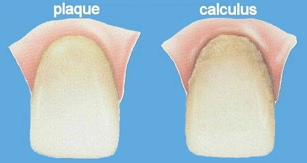 how to clean hardened plaque from teeth