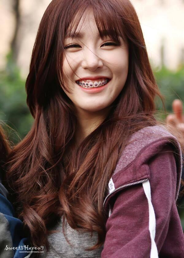 Kpop Idols Braces Nữ Thần Toc đẹp Snsd