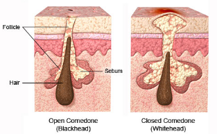1 Clogged Hair Follicle Causes 2 Cyst 3 Hardened Se 4 How To Open Blocked Roots 5 Reopen Follicles 6