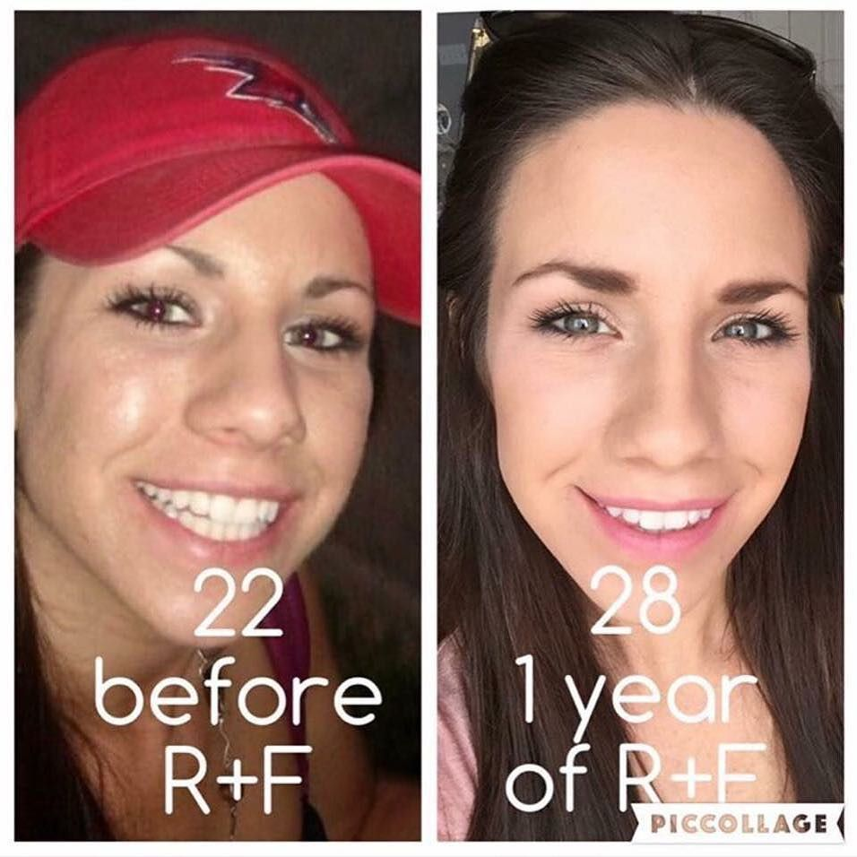 Trudy Hedgecough On Instagram Who Thinks The 28 Years Young Skin Looks Better Then Her 22 Year Old Self Just Curious Rod Young Skin Rodan And Fields Skin