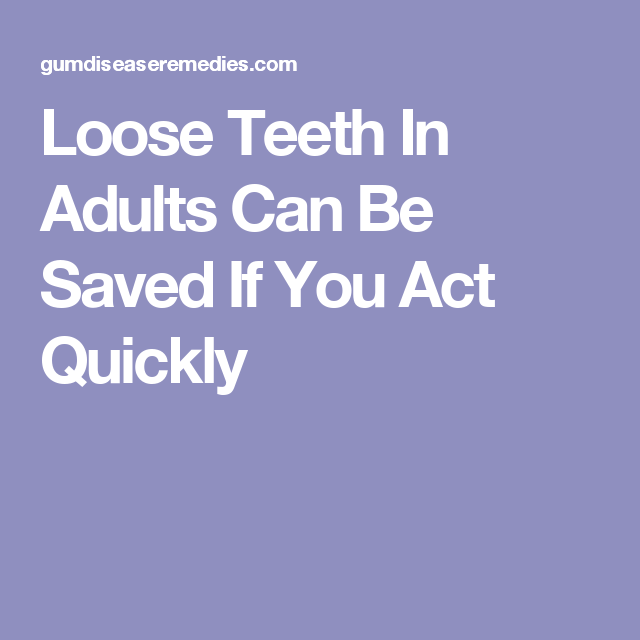 Loose Teeth In Adults Can Be Saved If You Act Quickly