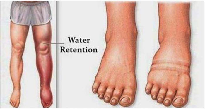 como parar pernas e tornozelos inchados