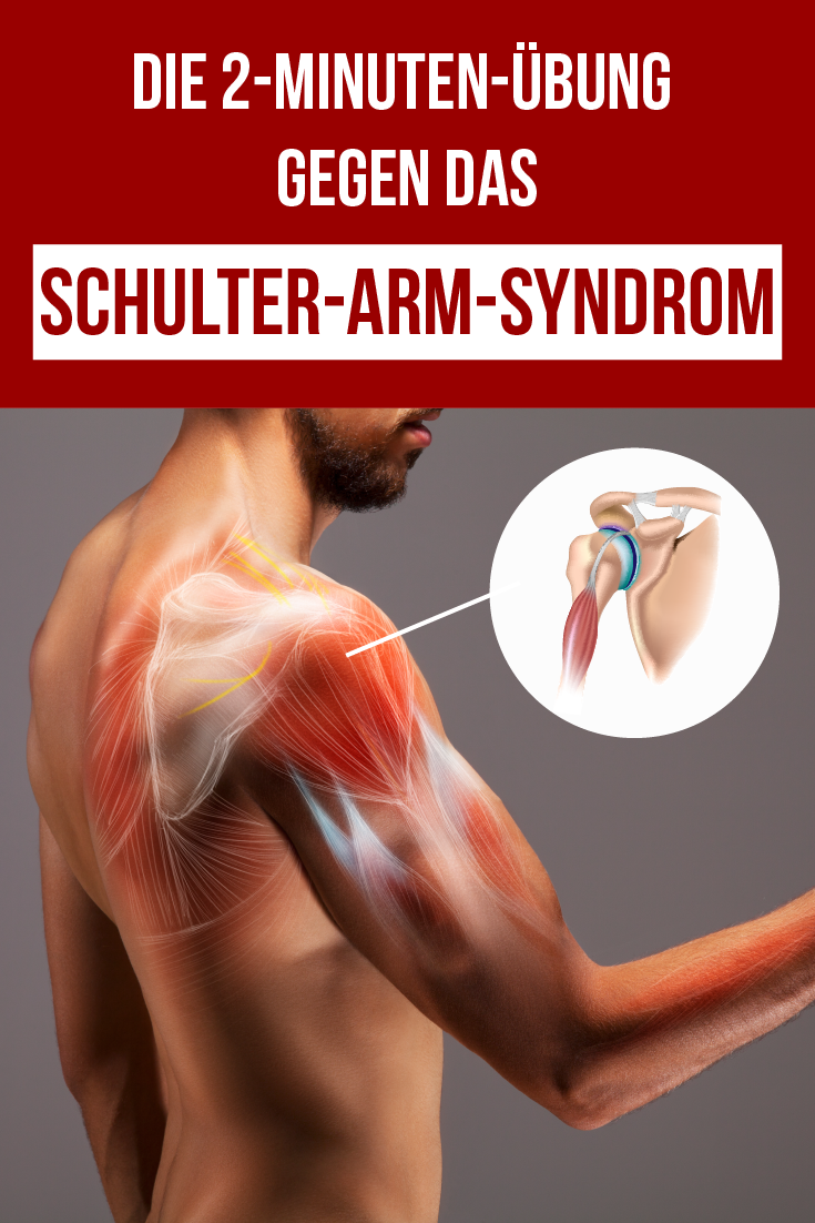 Schulter-Arm-Syndrom in 2 Minuten lindern