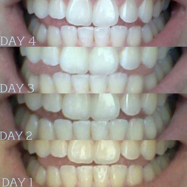 charcoal teeth whitening instructions
