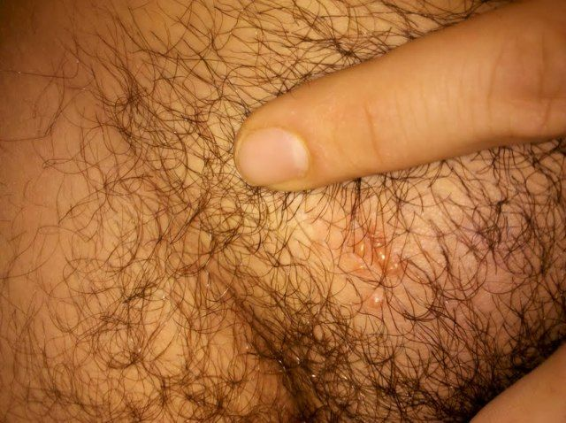 Shaved genital area photo, pantie drop selfpic