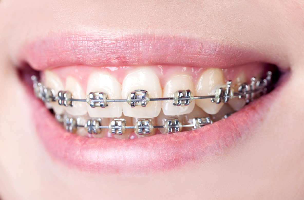 Summer Time Is A Big Time For Travel Try Putting Together A Braces Travel Kit So You Are Ready Your Toothbru Dental Braces Affordable Braces Orthodontics