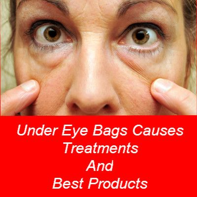 Under Eye Bags Treatments, Causes And Best Cream | Hair