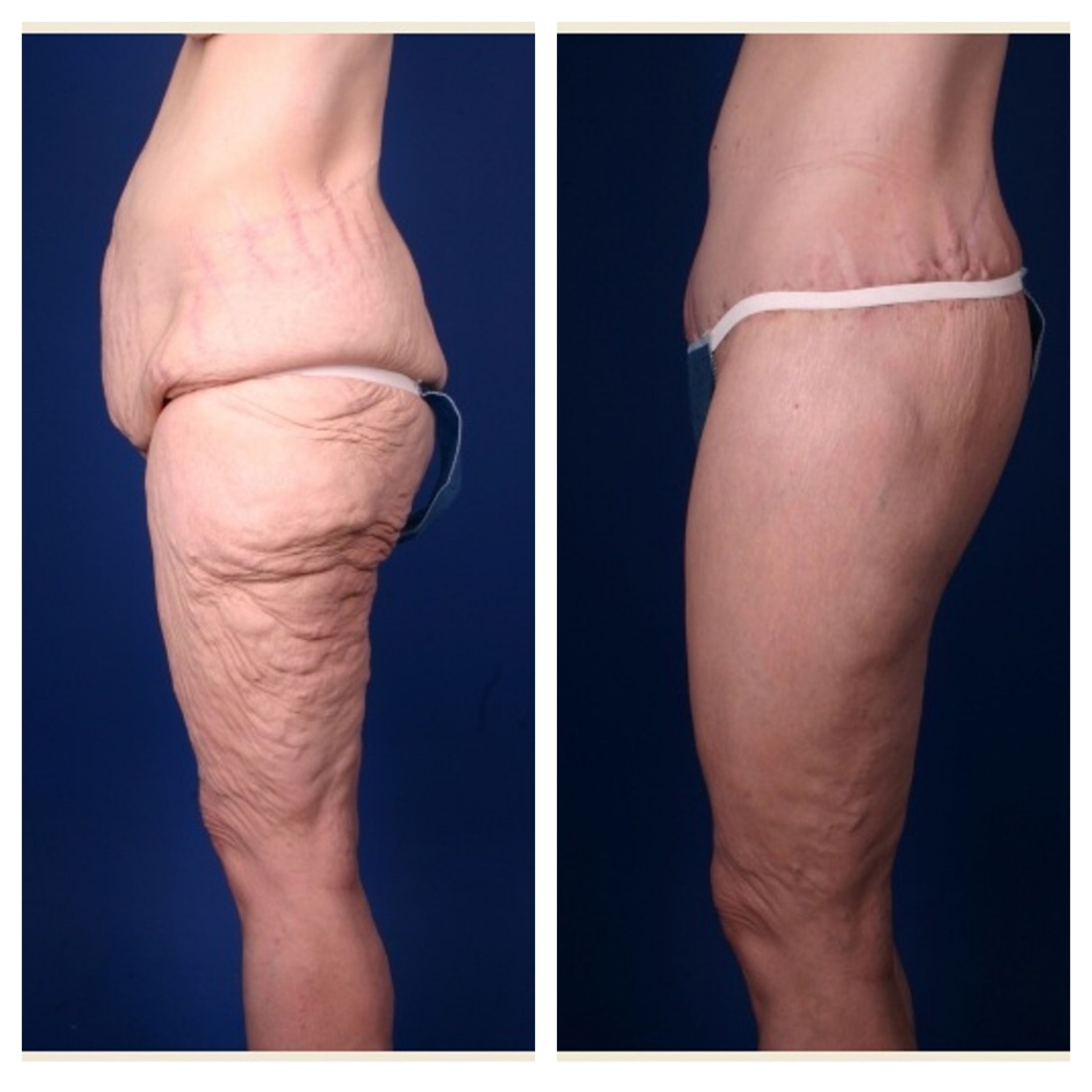 Pin On Before After Body Contouring