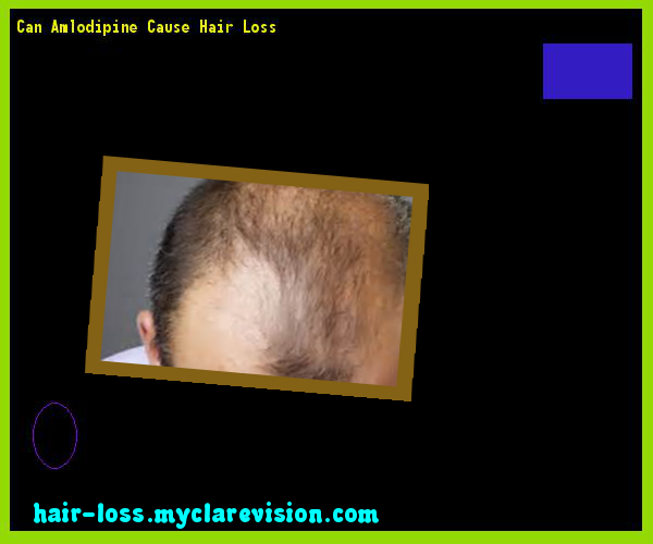 Can Amlodipine Cause Hair Loss 11 - Hair Loss Cure! | Thinning ...