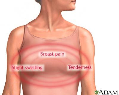Pregnant Without Breast Tenderness