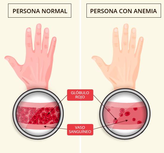 Mirad que cambio de una persona sin anemia a una que padece esta enfermedad. Esto son los glóbulos rojos, rojos por la hemoglobina, que es la proteína del hierro.