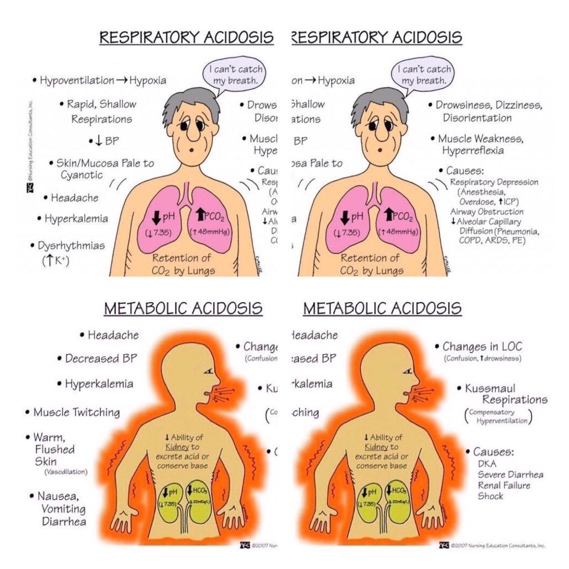 Metabolic Acidosis/Respiratory Acidosis Nursing