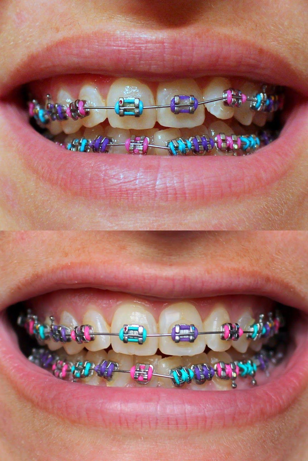 Purple - Pink - Blue | Braces Colors | Braces tips, Teeth