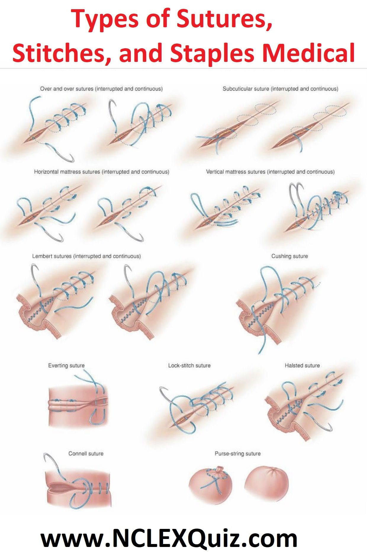 Types Of Sutures Stitches And Staples Medical 1 Surgical Suture Suture Types Wound Care
