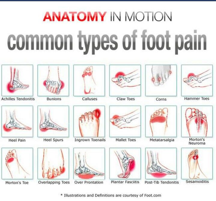 Foot pain | Nursing | Pinterest | Foot pain, Ankle pain and Remedies