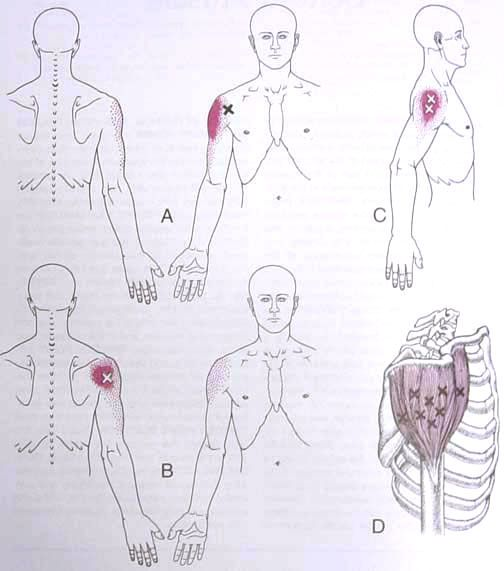 Deltoid Trigger Point Diagram Triggers Points Therapy Xi