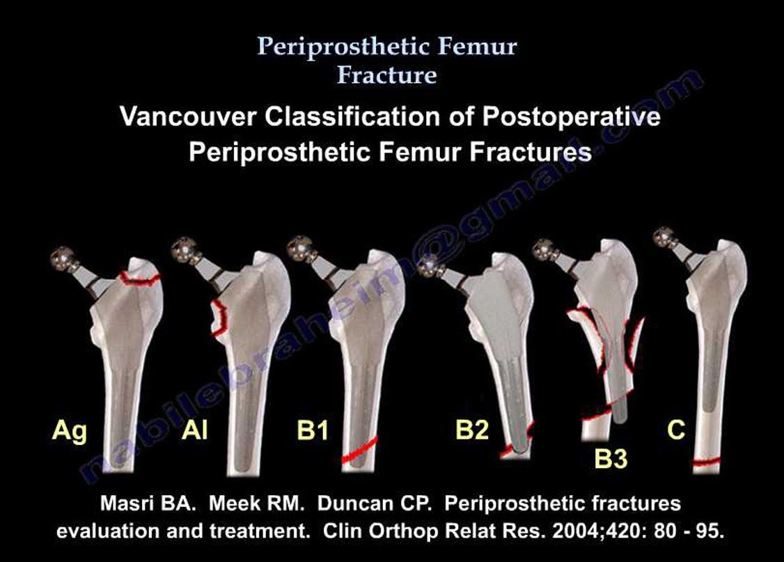 Femur Fracture, Periprosthetic fracture - Everything You Need To ...