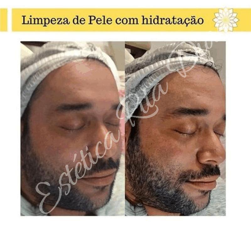Drenagem Linfatica Com Imagens Limpeza De Pele Tratamento De