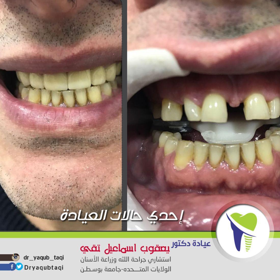 زراعه الأسنان تمنحك اسنان صحية قوية وتمنحك إبتسامة طبيعية يوجد تقسيط عن طريق بيت التمويل الكويتي عيادة دكتور يعقو Live Lokai Bracelet Lokai Bracelet Bracelets